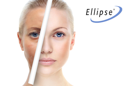 ELLIPSE® IPL, LUZ INTENSA PULSADA MANCHAS